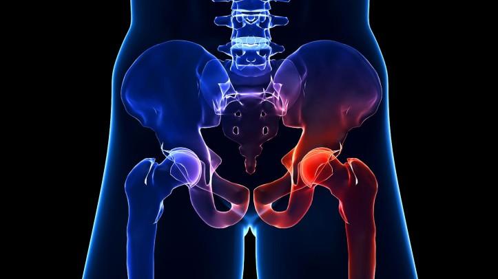 minimally-invasive-hip-surgery-not-always-right-choice-1440x810